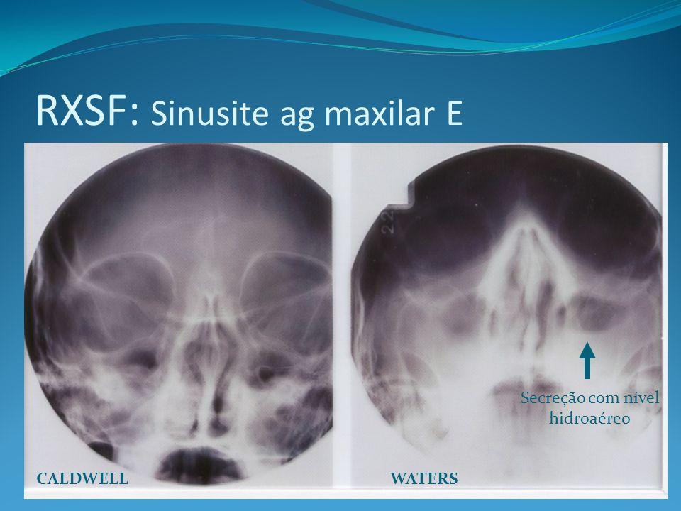 RXSF: Sinusite ag maxilar E