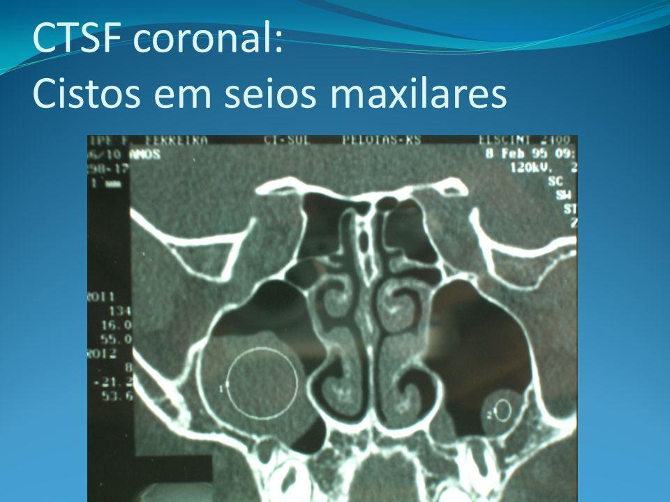 CTSF coronal: Cistos em seios maxilares