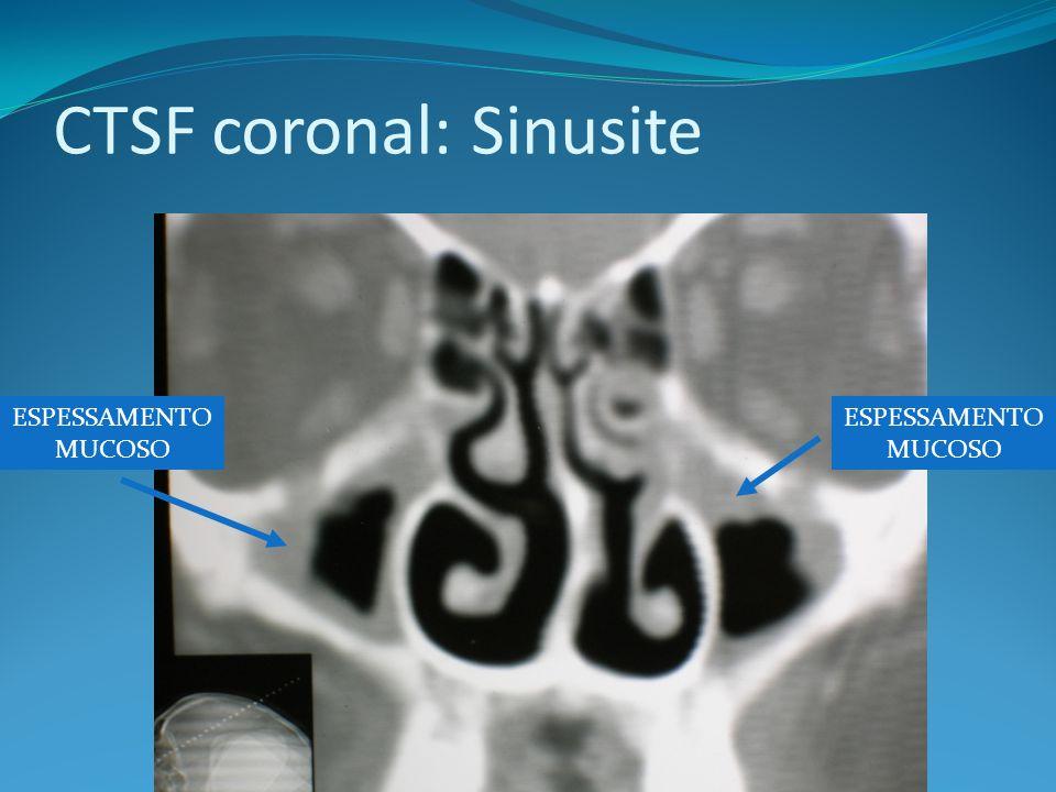 CTSF coronal: Sinusite
