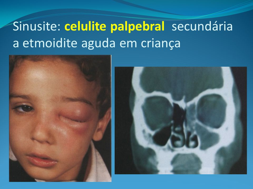 Sinusite: celulite palpebral secundária a etmoidite aguda em criança