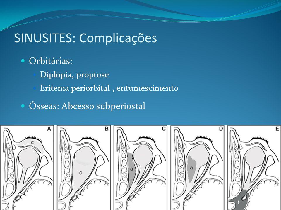 SINUSITES: Complicações