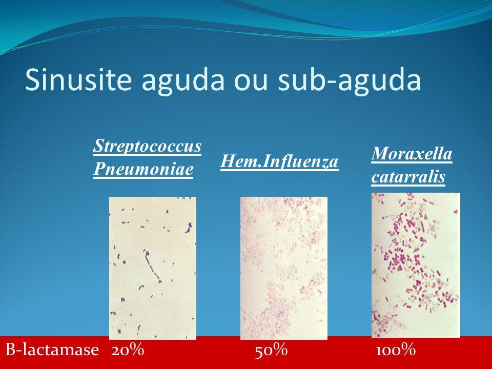 Sinusite aguda ou sub-aguda