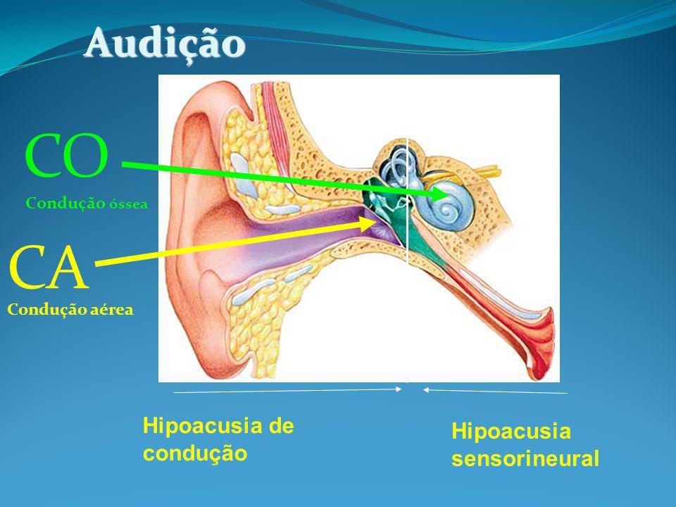 CO CA Audição Hipoacusia de condução Hipoacusia sensorineural