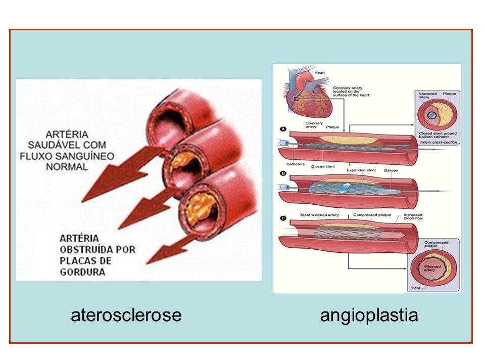 aterosclerose angioplastia