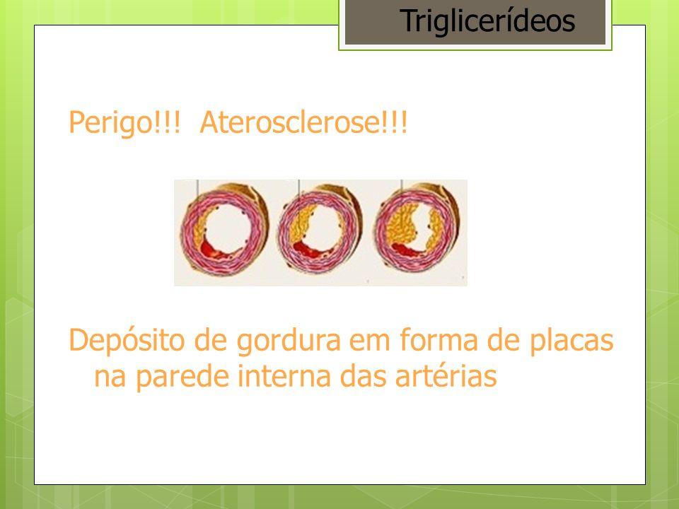 Triglicerídeos Perigo!!. Aterosclerose!!.