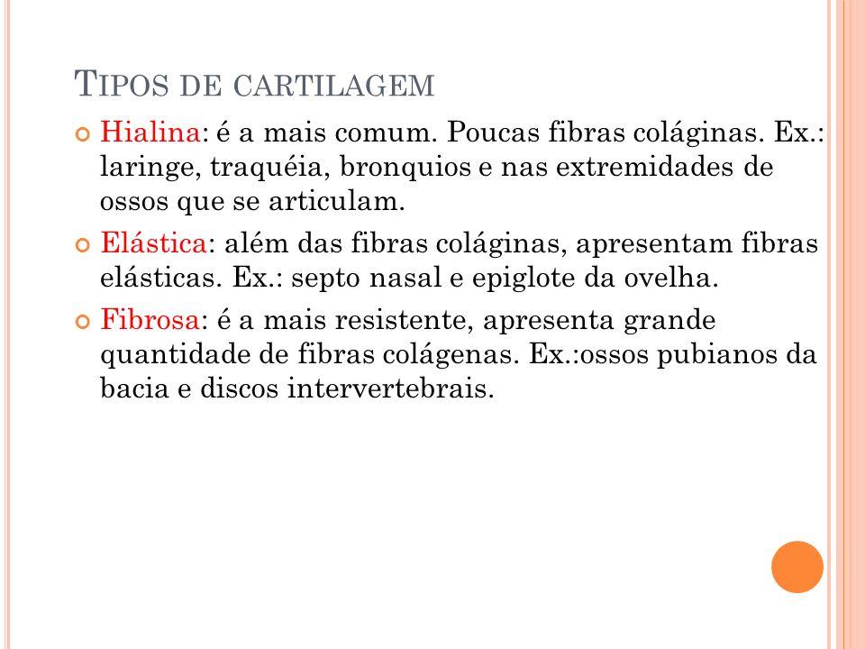 Tipos de cartilagem