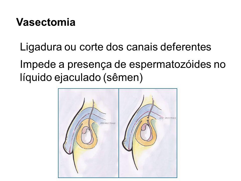 Vasectomia Ligadura ou corte dos canais deferentes.