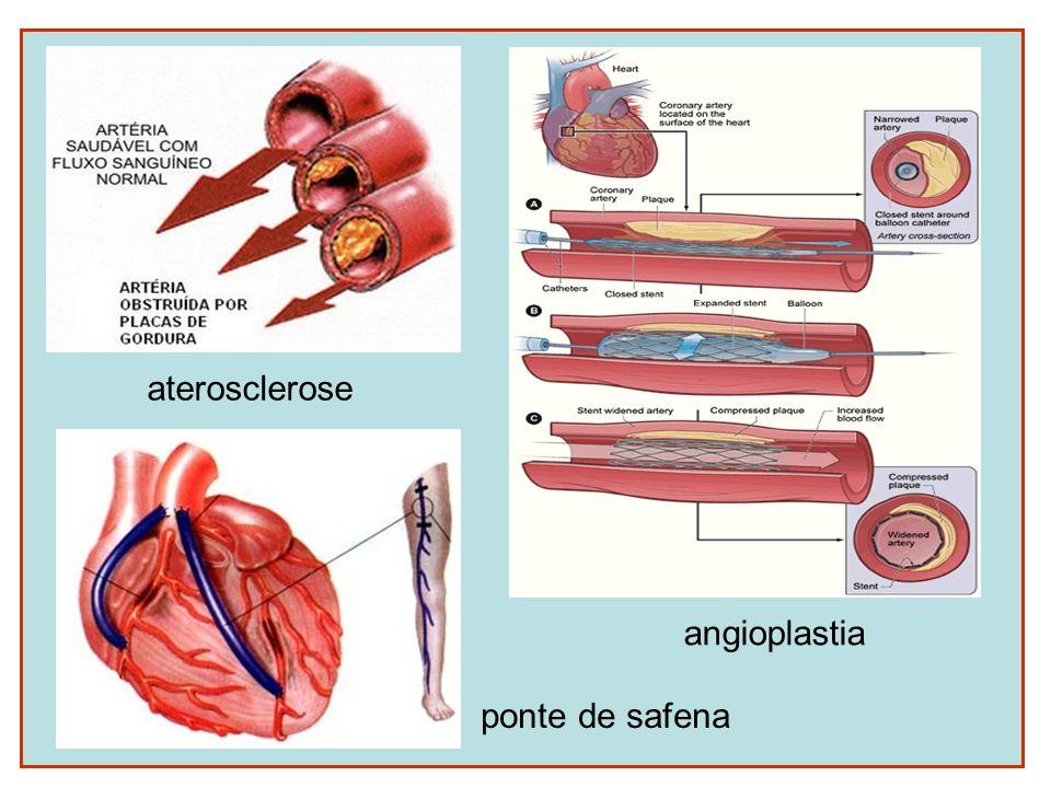 aterosclerose angioplastia ponte de safena