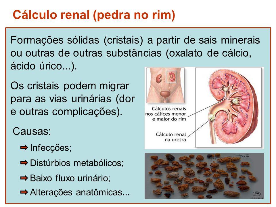 Cálculo renal (pedra no rim)