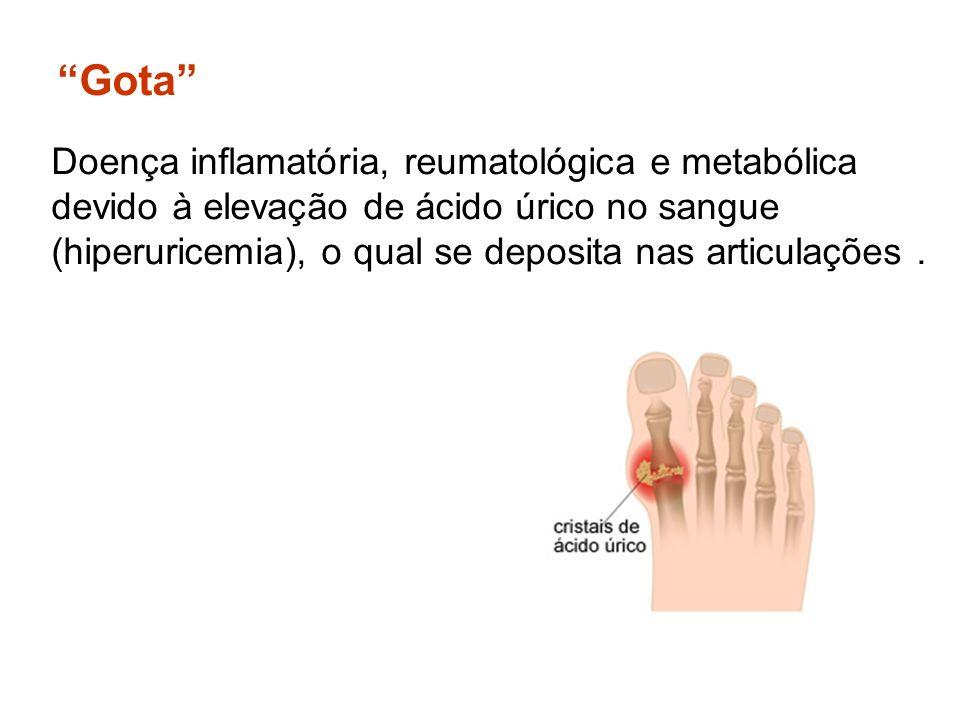 Gota Doença inflamatória, reumatológica e metabólica