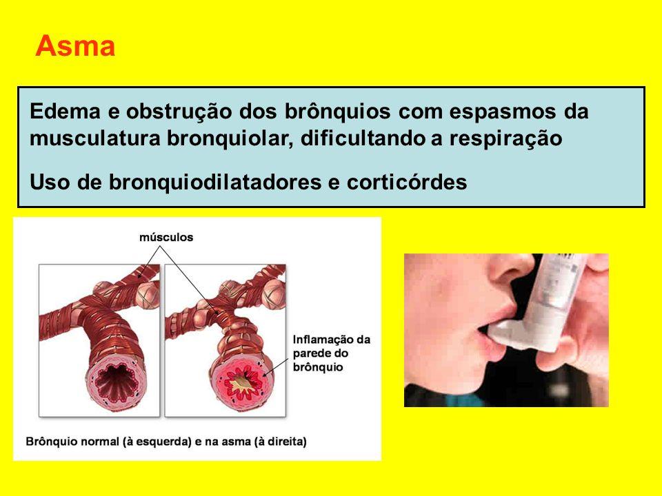 Asma Edema e obstrução dos brônquios com espasmos da
