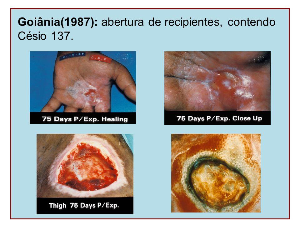 Goiânia(1987): abertura de recipientes, contendo