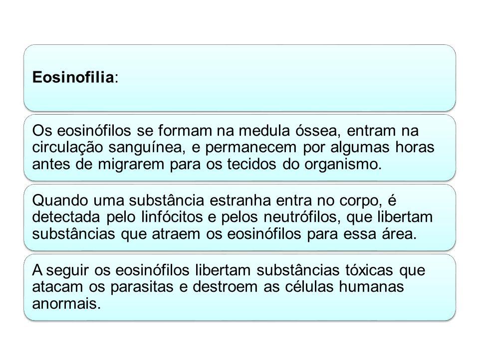 Eosinofilia: