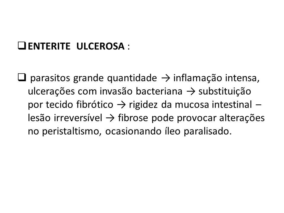 ENTERITE ULCEROSA :