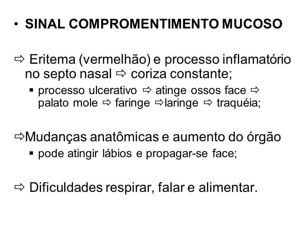 SINAL COMPROMENTIMENTO MUCOSO
