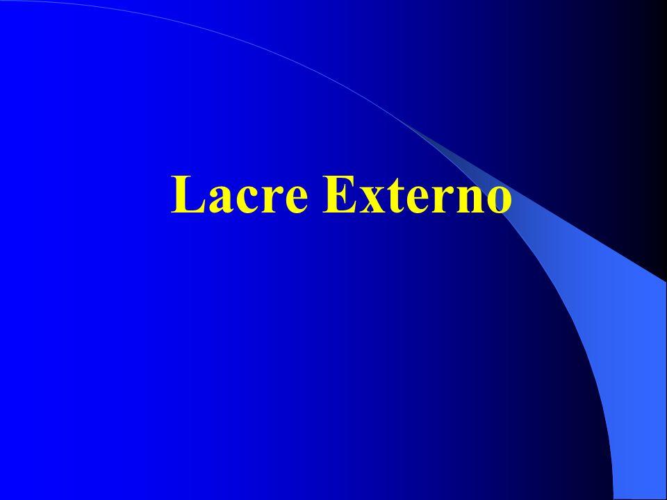 Lacre Externo