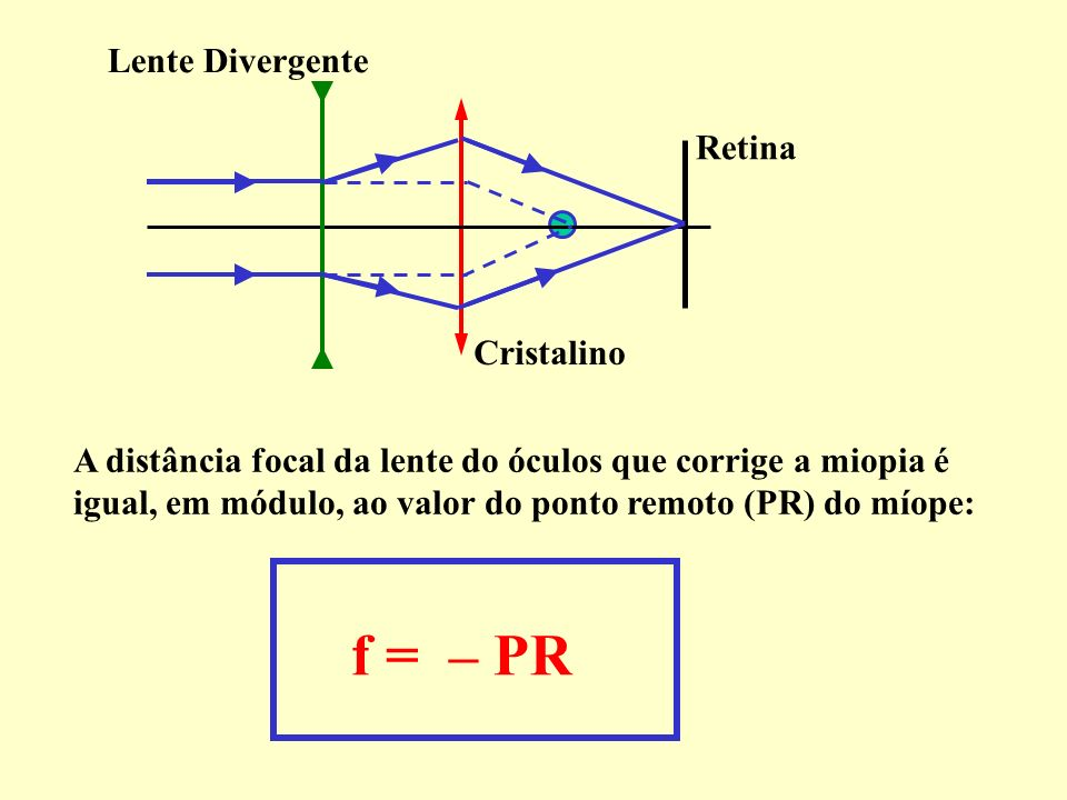 f = – PR Lente Divergente Retina Cristalino