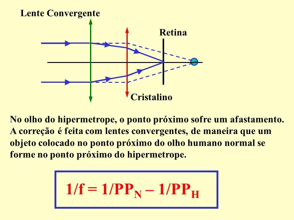 1/f = 1/PPN – 1/PPH Lente Convergente Retina Cristalino