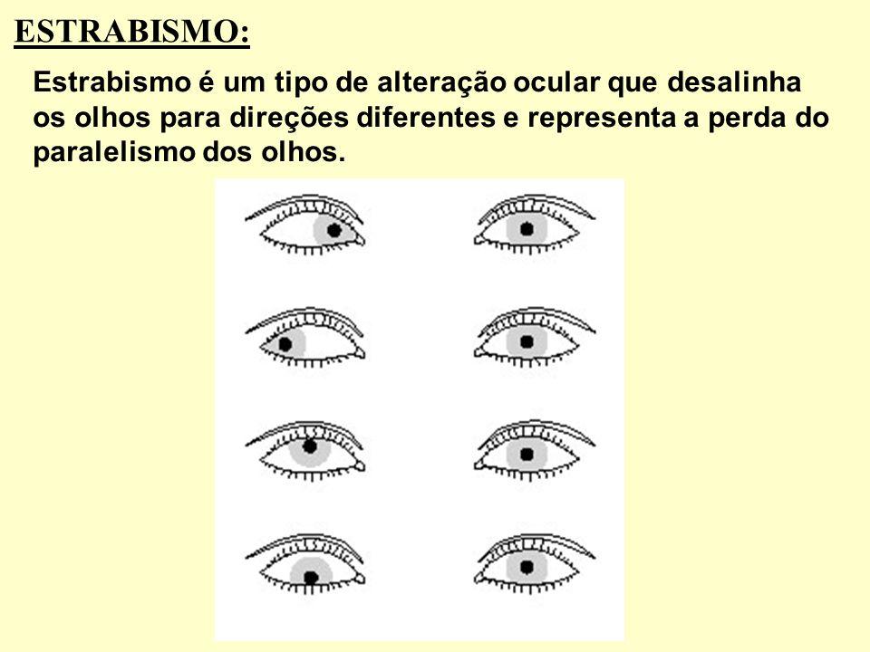 ESTRABISMO: Estrabismo é um tipo de alteração ocular que desalinha os olhos para direções diferentes e representa a perda do paralelismo dos olhos.
