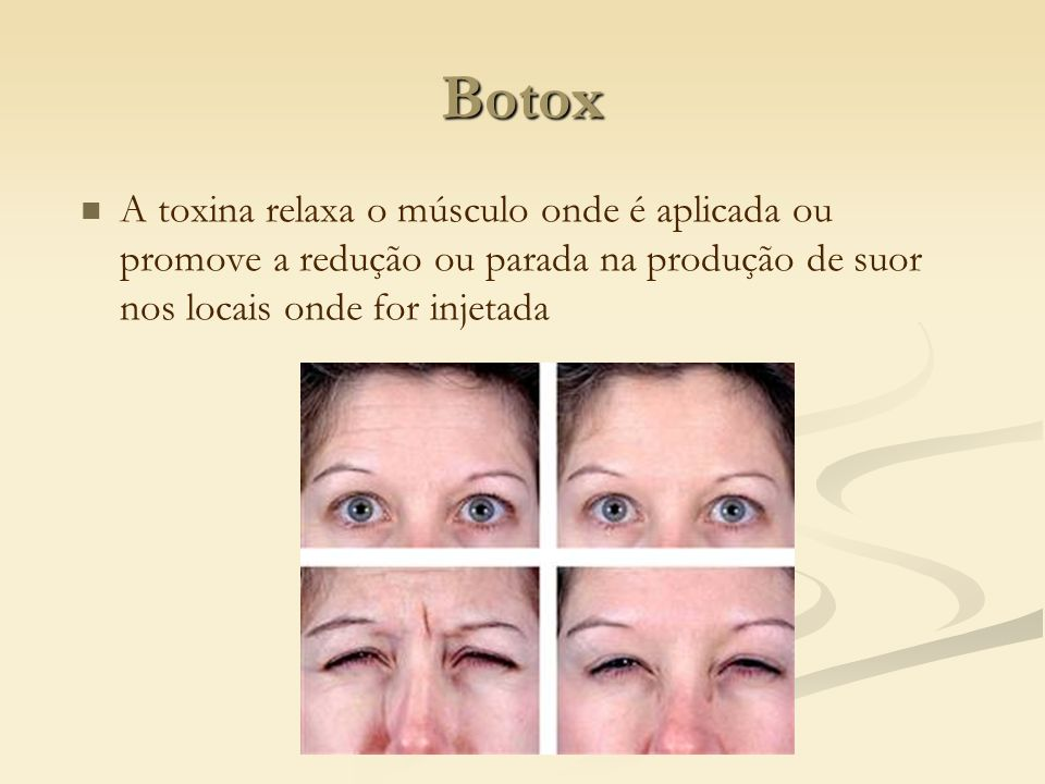 Botox A toxina relaxa o músculo onde é aplicada ou promove a redução ou parada na produção de suor nos locais onde for injetada.
