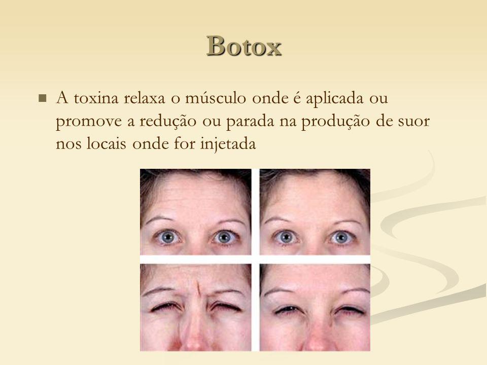BotoxA toxina relaxa o músculo onde é aplicada ou promove a redução ou parada na produção de suor nos locais onde for injetada.