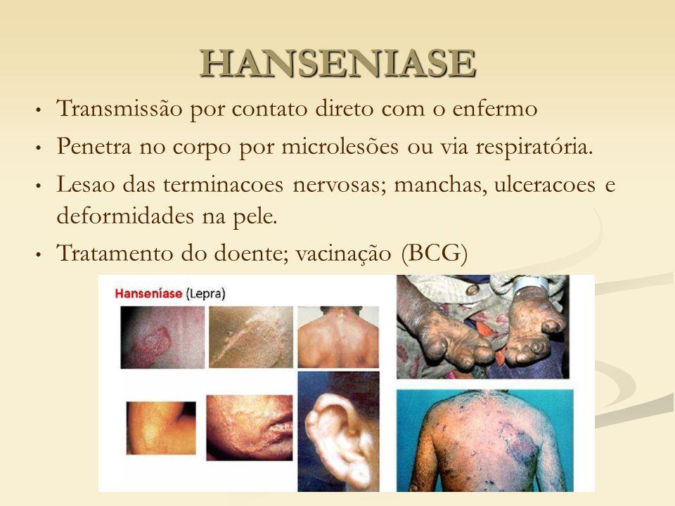 HANSENIASE Transmissão por contato direto com o enfermo