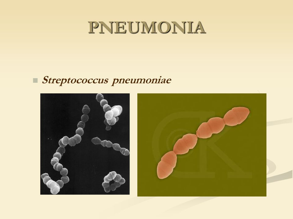 PNEUMONIA Streptococcus pneumoniae