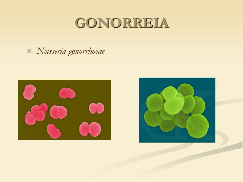 GONORREIA Neisseria gonorrhoeae