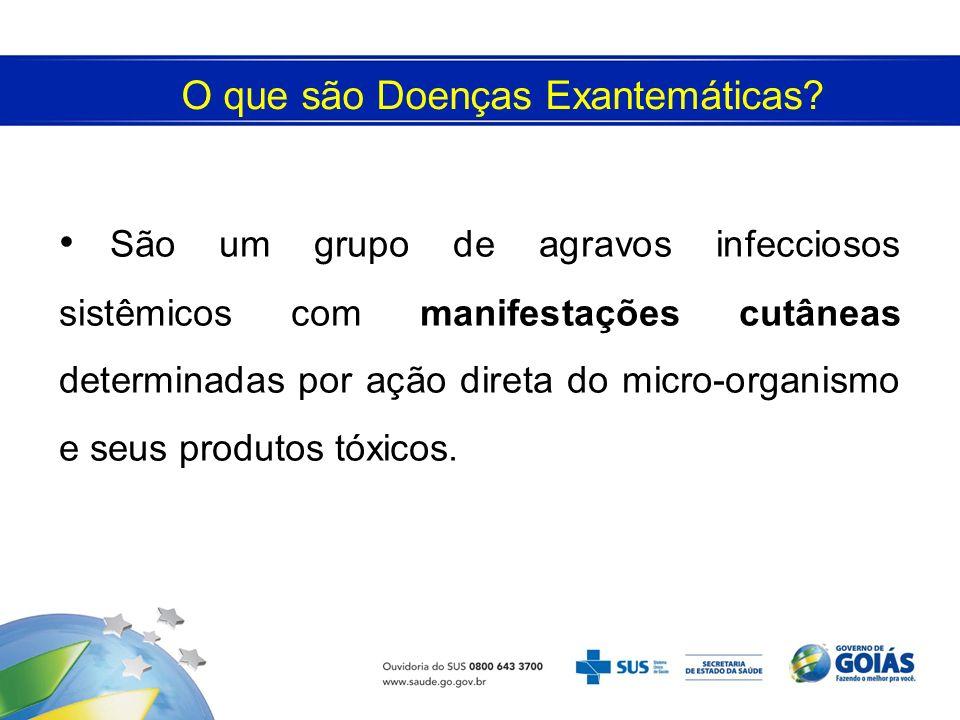 O que são Doenças Exantemáticas