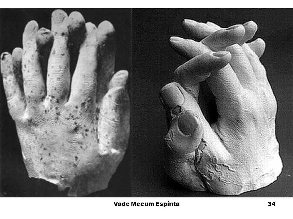 A mão da direita foi feita pelos críticos tentando mostrar que o fenômeno apresentado era uma farsa mas compare o punho com as mãos e pés anteriores.