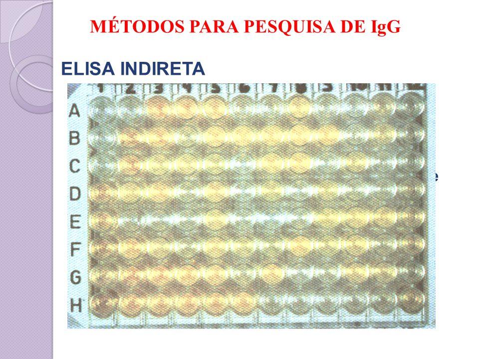 MÉTODOS PARA PESQUISA DE IgG