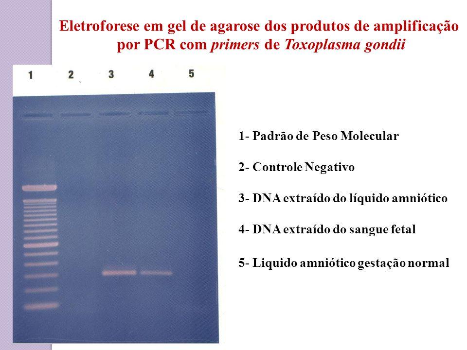 Eletroforese em gel de agarose dos produtos de amplificação