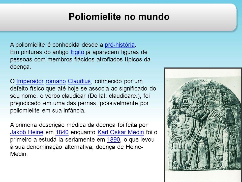 Poliomielite no mundo A poliomielite é conhecida desde a pré-história.