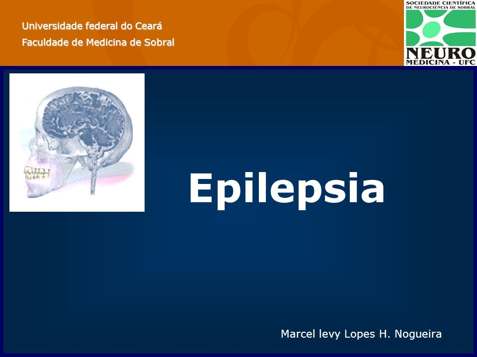Epilepsia Marcel levy Lopes H. Nogueira Universidade federal do Ceará