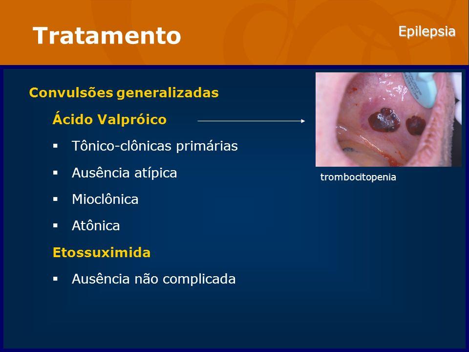 Tratamento Convulsões generalizadas Ácido Valpróico