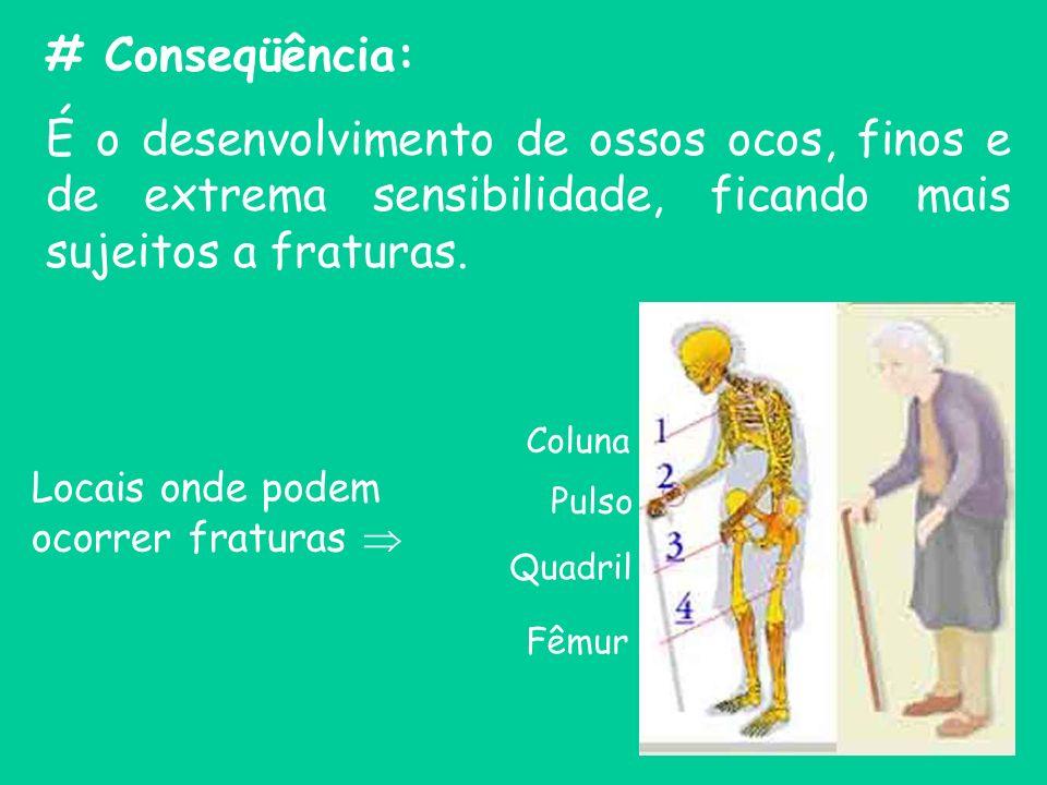 # Conseqüência:É o desenvolvimento de ossos ocos, finos e de extrema sensibilidade, ficando mais sujeitos a fraturas.