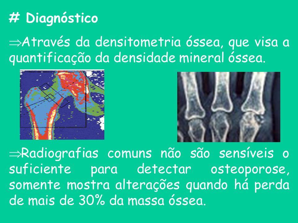 # Diagnóstico Através da densitometria óssea, que visa a quantificação da densidade mineral óssea.