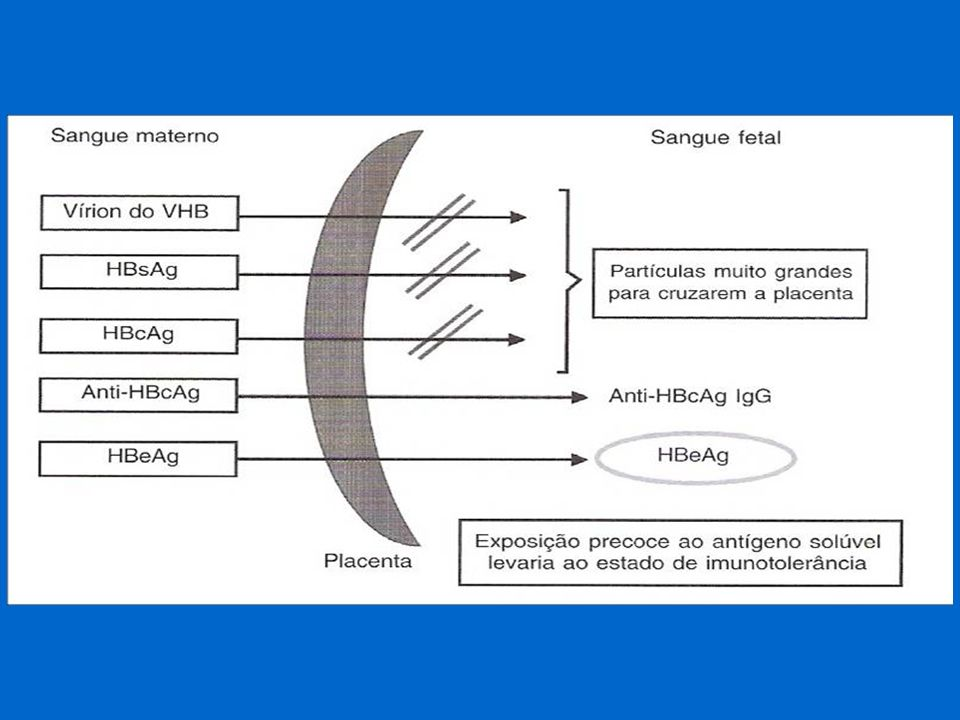 Hepatite B: transmissão perinatal Mãe AgHBs +, anti-HBe + , DNA -