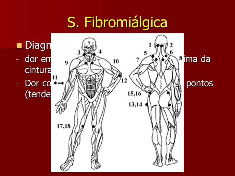 S. Fibromiálgica Diagnóstico: clínico de exclusão