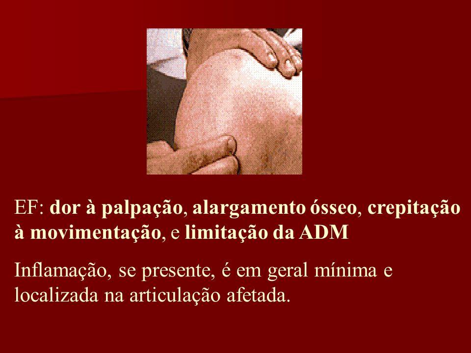 EF: dor à palpação, alargamento ósseo, crepitação à movimentação, e limitação da ADM