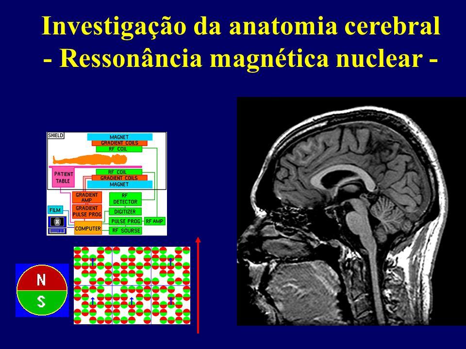 Investigação da anatomia cerebral - Ressonância magnética nuclear -