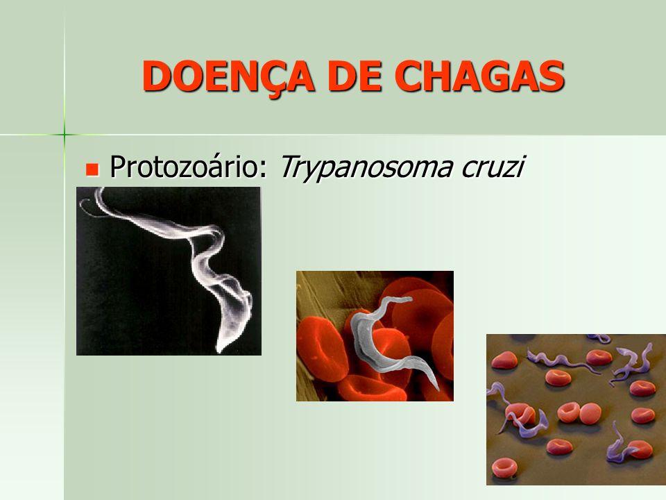 DOENÇA DE CHAGAS Protozoário: Trypanosoma cruzi