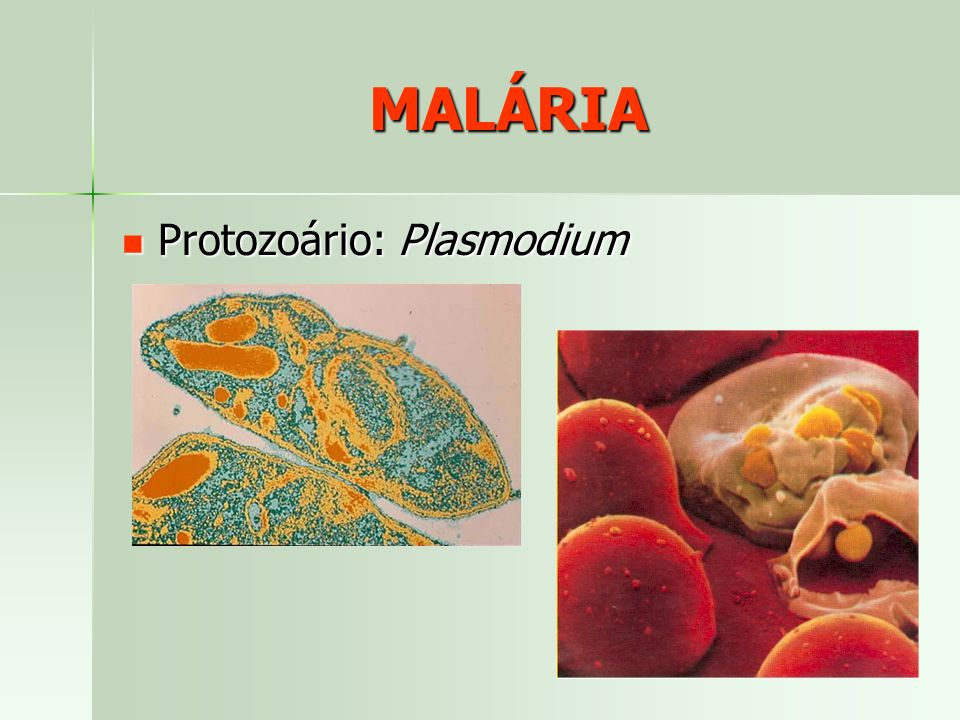 MALÁRIA Protozoário: Plasmodium