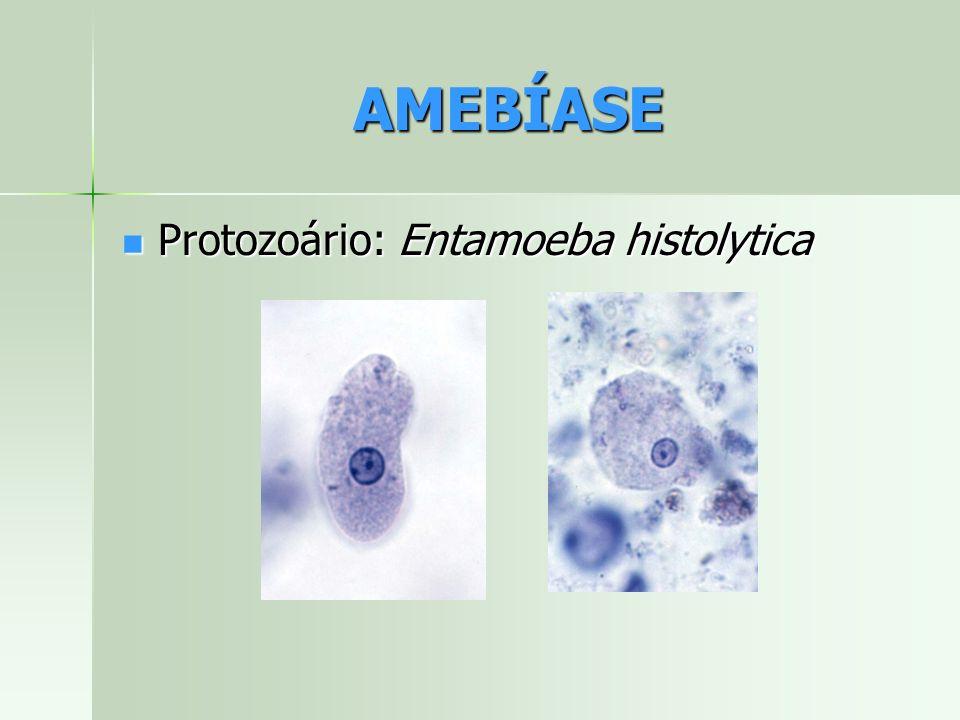 AMEBÍASE Protozoário: Entamoeba histolytica