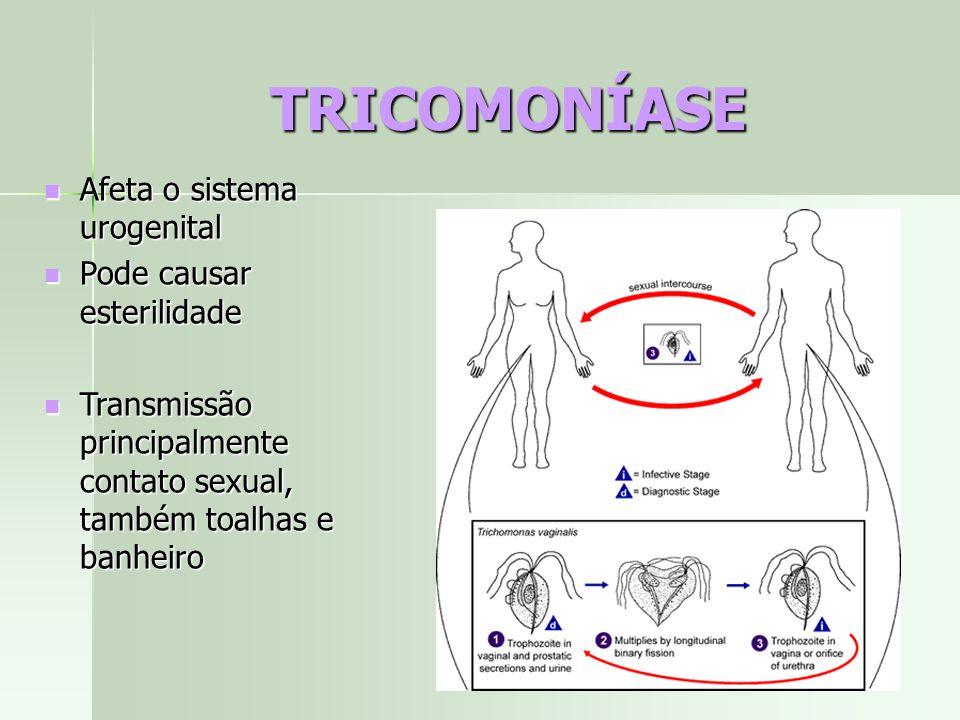 TRICOMONÍASE Afeta o sistema urogenital Pode causar esterilidade
