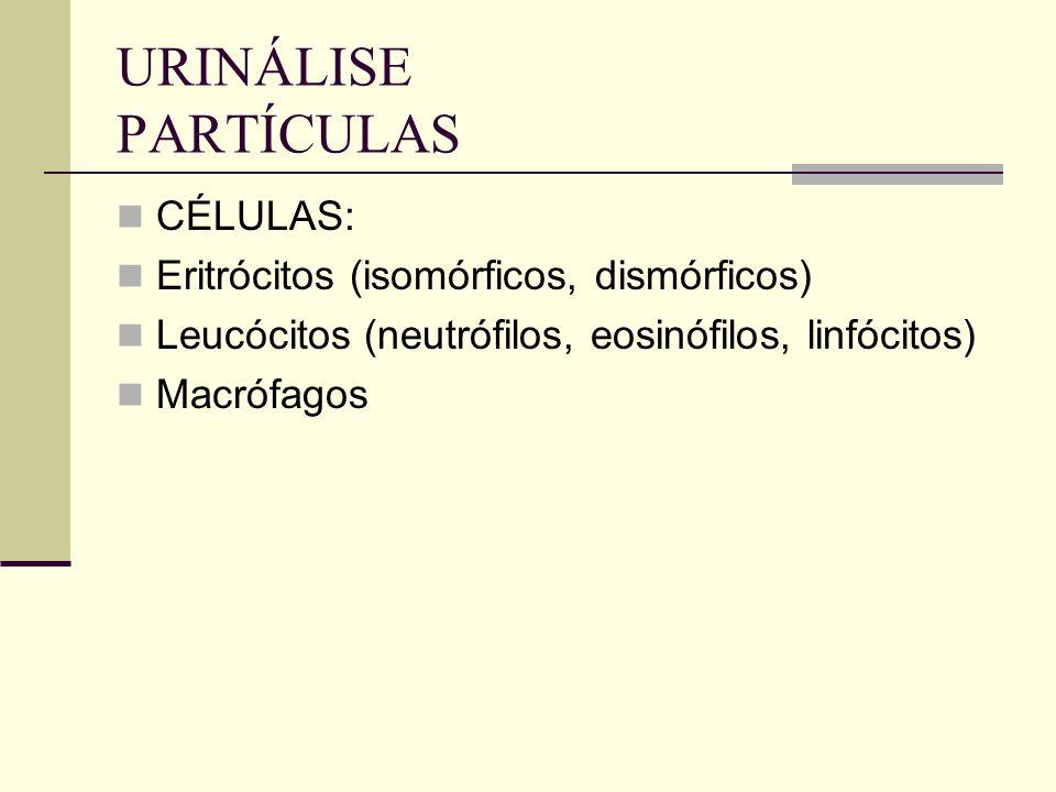 URINÁLISE PARTÍCULAS CÉLULAS: Eritrócitos (isomórficos, dismórficos)