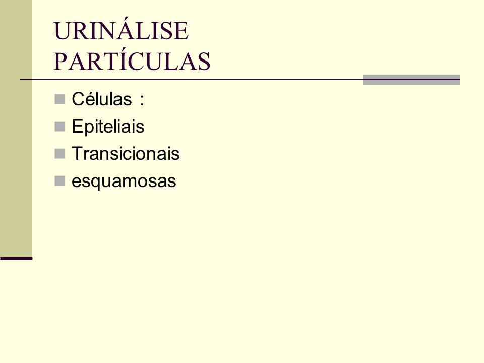 URINÁLISE PARTÍCULAS Células : Epiteliais Transicionais esquamosas