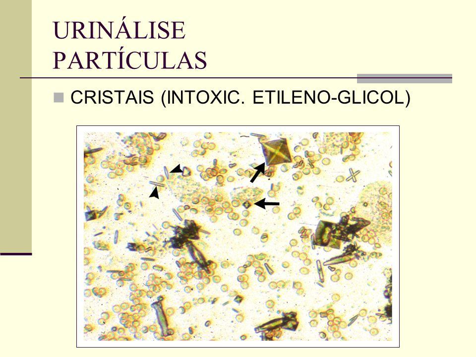 URINÁLISE PARTÍCULAS CRISTAIS (INTOXIC. ETILENO-GLICOL)