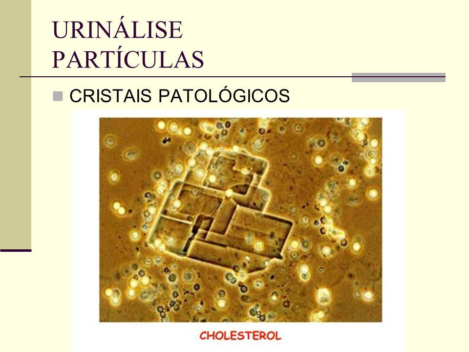 URINÁLISE PARTÍCULAS CRISTAIS PATOLÓGICOS