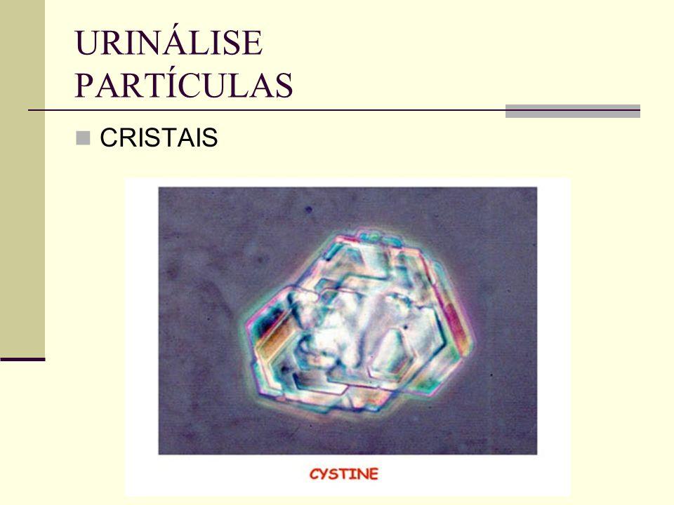URINÁLISE PARTÍCULAS CRISTAIS
